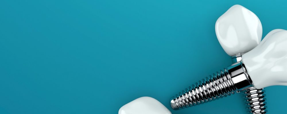 Curious About Whether to Get Dental Implants?