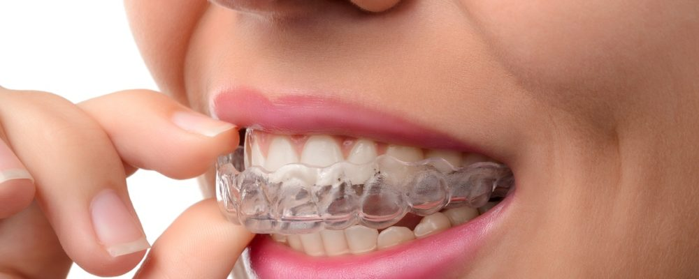 Searching for Invisalign in Sheffield?