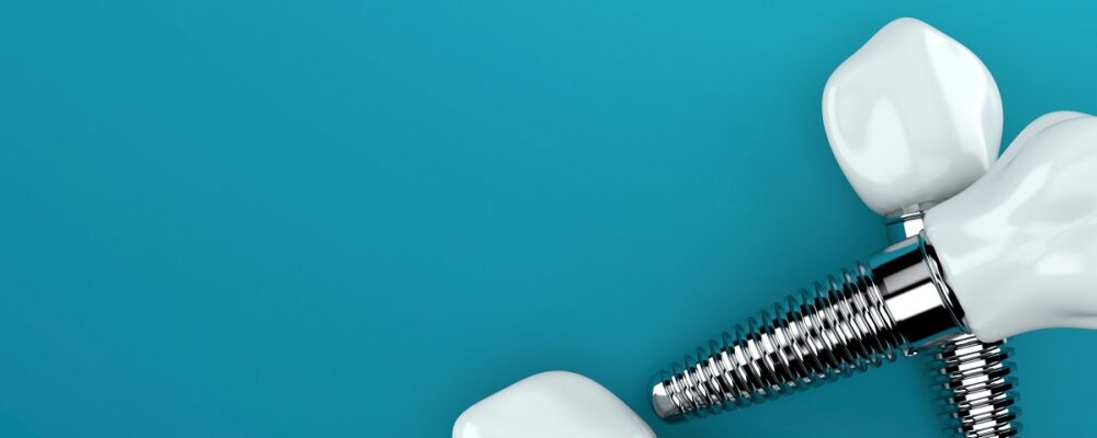 Permanent Solutions to Replacing Teeth
