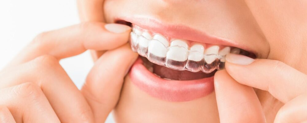 Invisalign in W1 – why might they suit you better than a fixed brace?